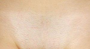 Причины выпадения волос на лобковой части у женщин