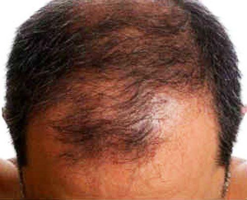 Как долго восстанавливаются волосы после выпадения при стрессе