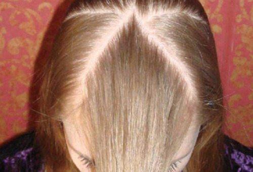 Как принимать кальций глюконат в таблетках взрослому при выпадении волос