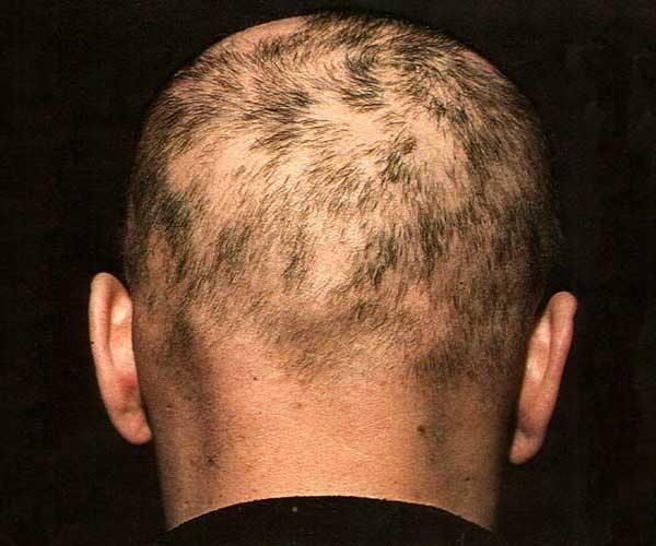 На какой стадии может быть выпадение волос при сифилисе