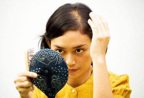 Спектральный анализ при выпадении волос что это такое