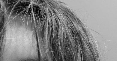 Кожа волос: Всем продуктивного дня мои подписчики Я хочу ответить на часто задающий вопрос.Выпаде…