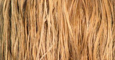 От чего может быть демодекоз на голове и выпадение волос