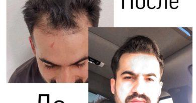 Молодой парень, журналист, обратился к нам с проблемой отсутствия волос на лбу. ⠀ Одн...