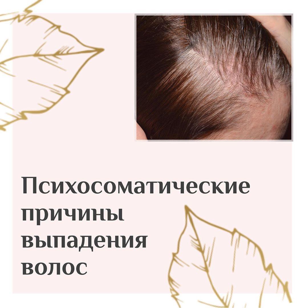 """""""Выпадение волос – это ужас ужасный для большинства женщин. Паниковать не надо, буде..."""