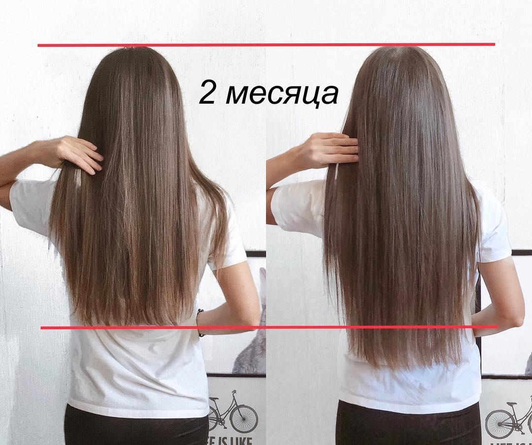 Потеря волос: Наконец я готова поделиться впечатлениями после 2-х месяцев использования Тоника Wele...