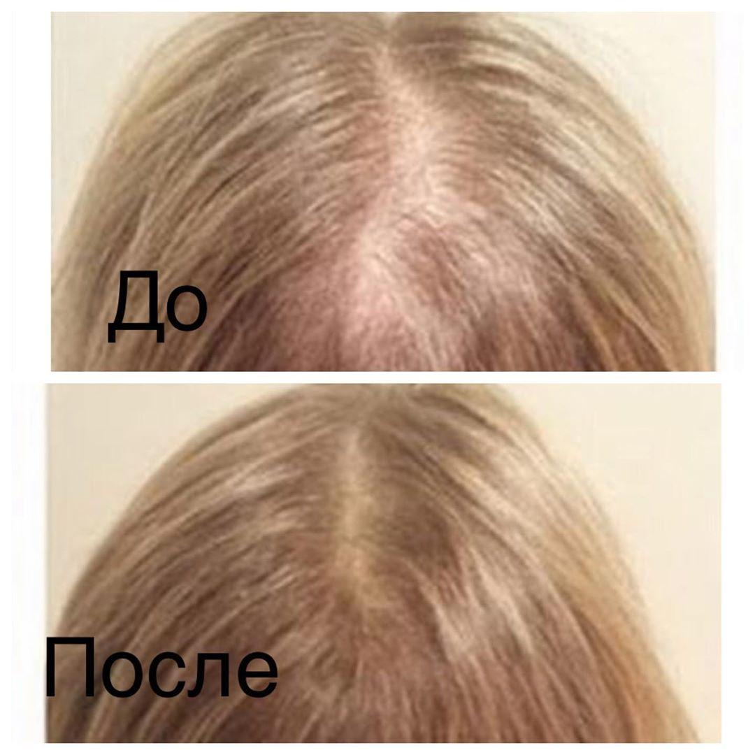 Лечение волос:  Из-за частых стрессов, неблагоприятной экологии и вредных привычек многие сталкивают...