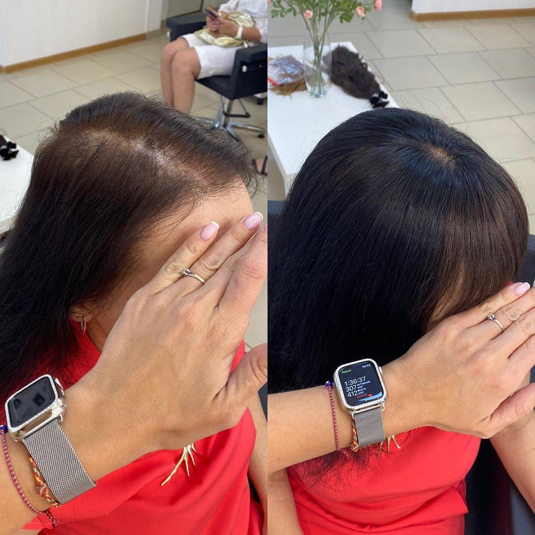Настойка волос: Наша невесомая, дышащая накладка  из натуральных волос с шелковой вставкой  ⠀ Проблем...