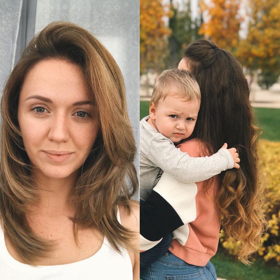 Алопеция: Разница фото 2 года 4 месяца Очень много вопросов по волосам, поэтому расскажу, что и...