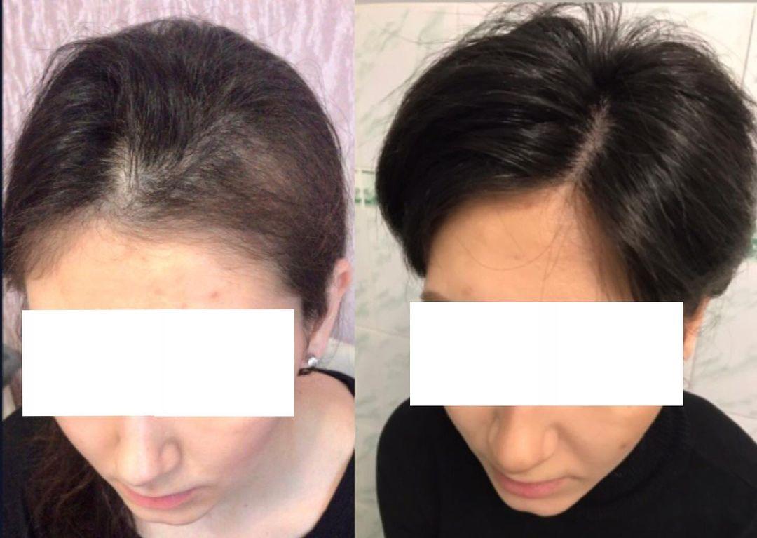 Укрепление волос: Клинический случай. 9 месяцев назад ко мне обратилась девушка 25 лет, которая стремит...