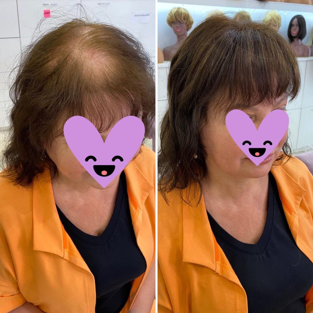 Корни волос: На фото представлена  натуральная накладка   Размер крепления 14*14 Длина 30 сантимет...